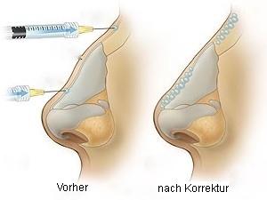 Vorher/ Nachher Nasenhöcker
