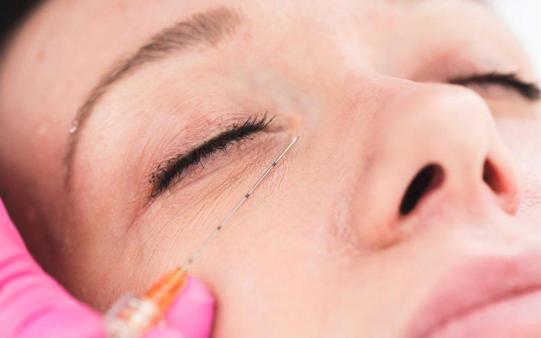 Augenringe – Welche Methoden helfen wirklich dagegen?