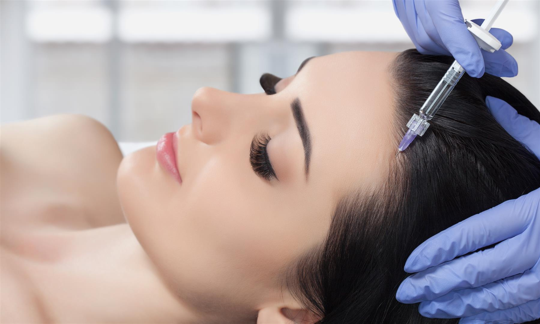 Haarausfall PRP Therapie