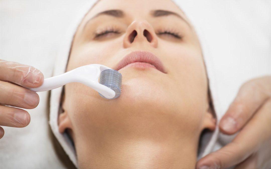Microneedling – Eine ideale Methode zur Verjüngung der Haut und zur Behandlung von Aknenarben