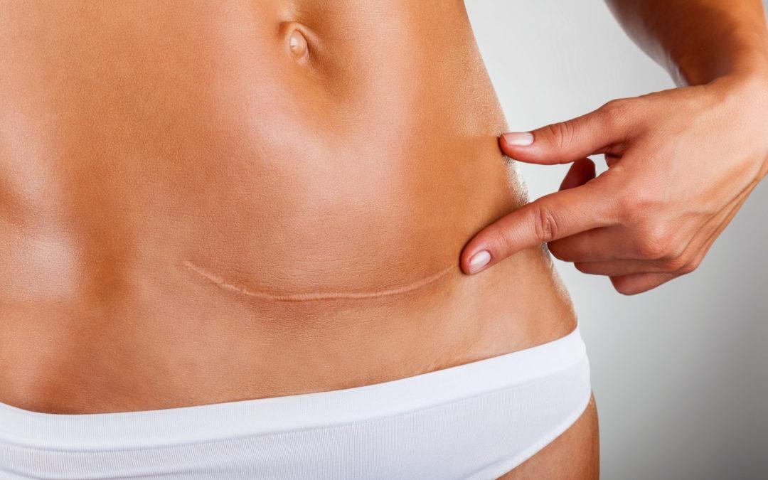 Narbenkorrektur – Ein Überblick über geeignete Methoden und mögliche Ergebnisse
